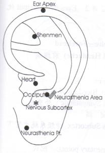 earacupunct