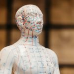 Are Chinese Medicine and Acupuncture Still Relevant?