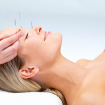woman relaxing with acupuncture needles